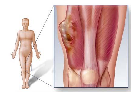 Phương pháp chữa và điều trị ung thư phần mềm